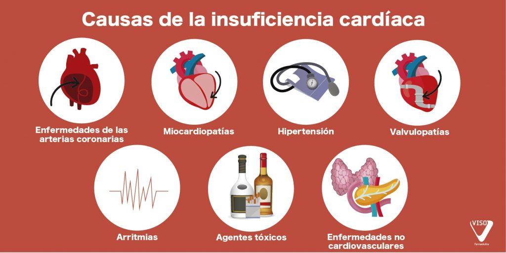 causas insuficiencia cardiaca